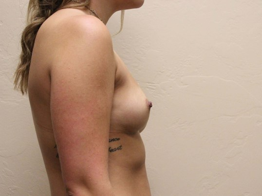 Breast Augmentation, 375cc Before