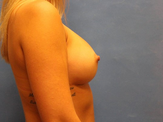 Breast Augmentation, 375cc After