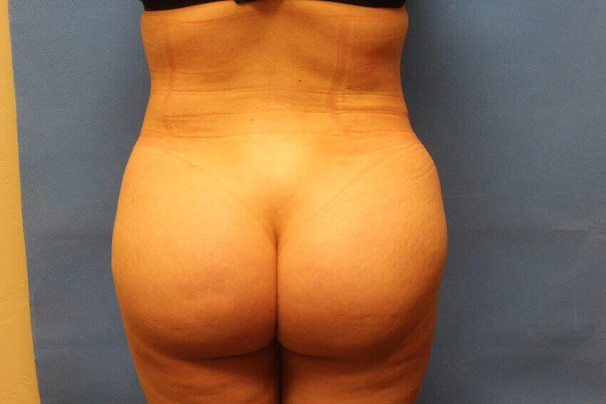 Brazilian Butt Lift After