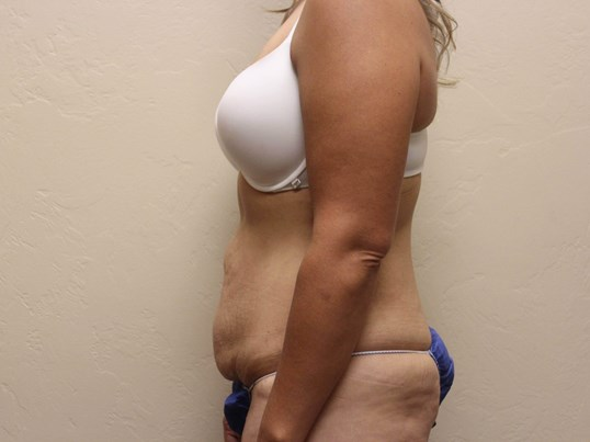 Abdominoplasty and Liposuction Before