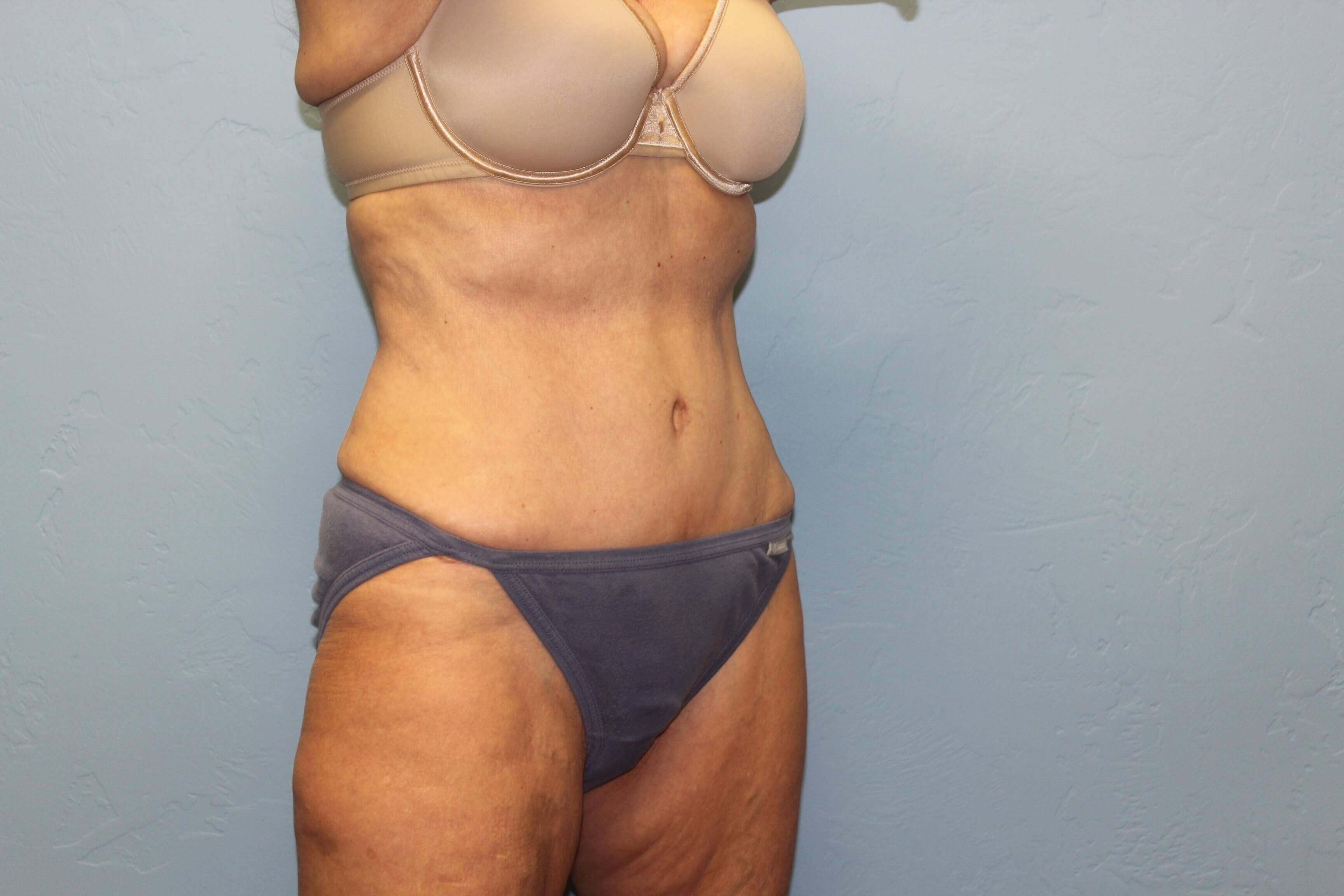 Abdominoplasty and Liposuction After