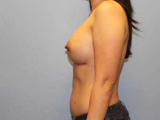 Remove/Replace Breast Implants After