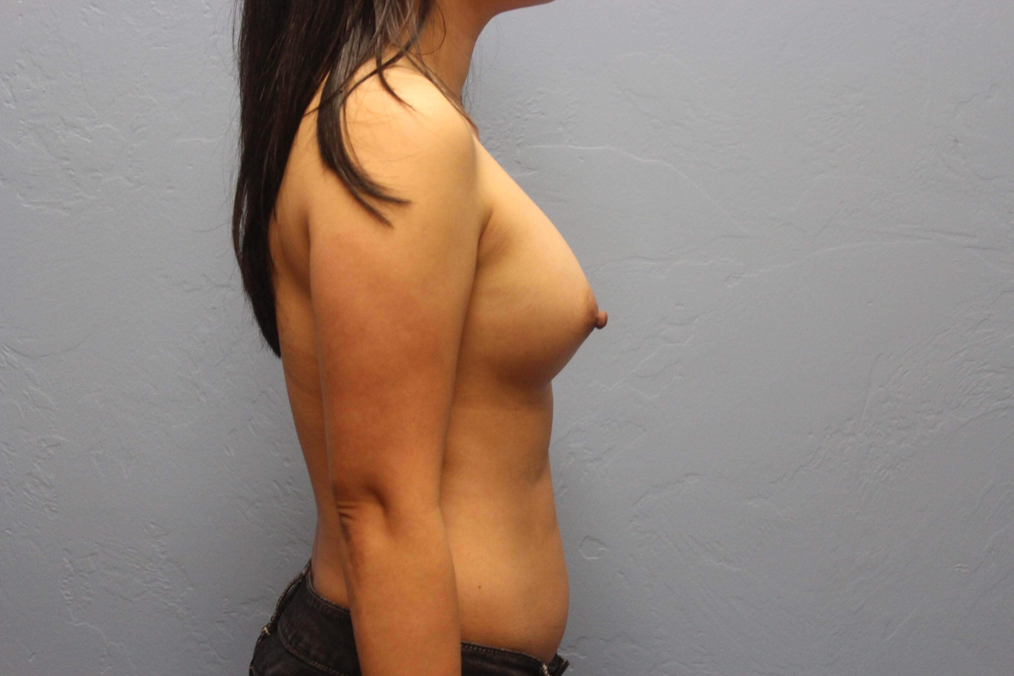 Remove/Replace Breast Implants Before