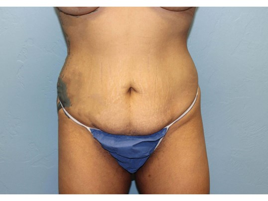 Before and After Body Contouring & Brazilian Butt Lift