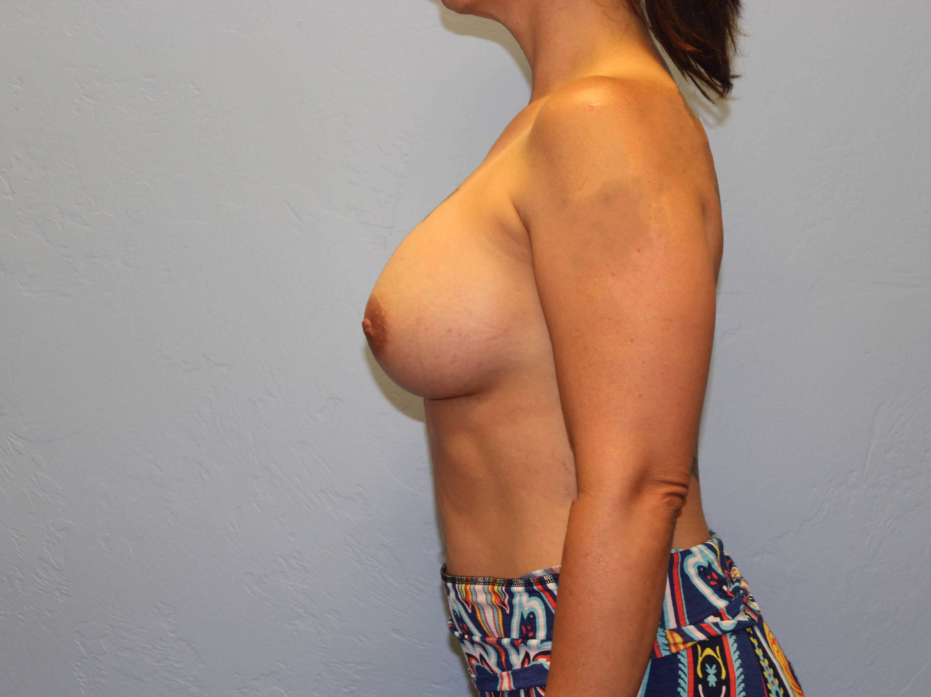 Breast Augmentation, Silicone After