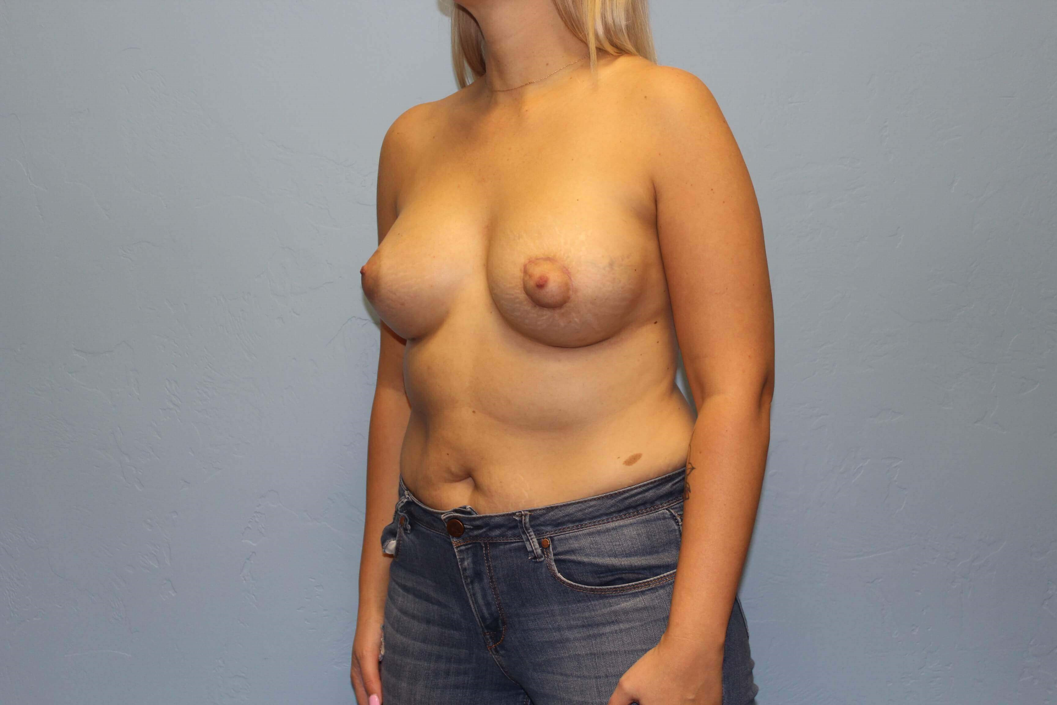 Breast Augmentation Lift After