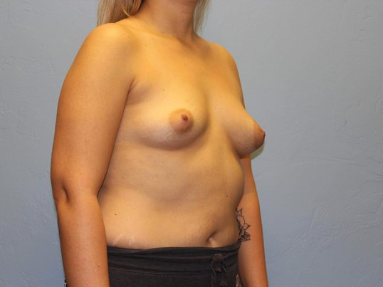 Breast Augmentation Lift Before