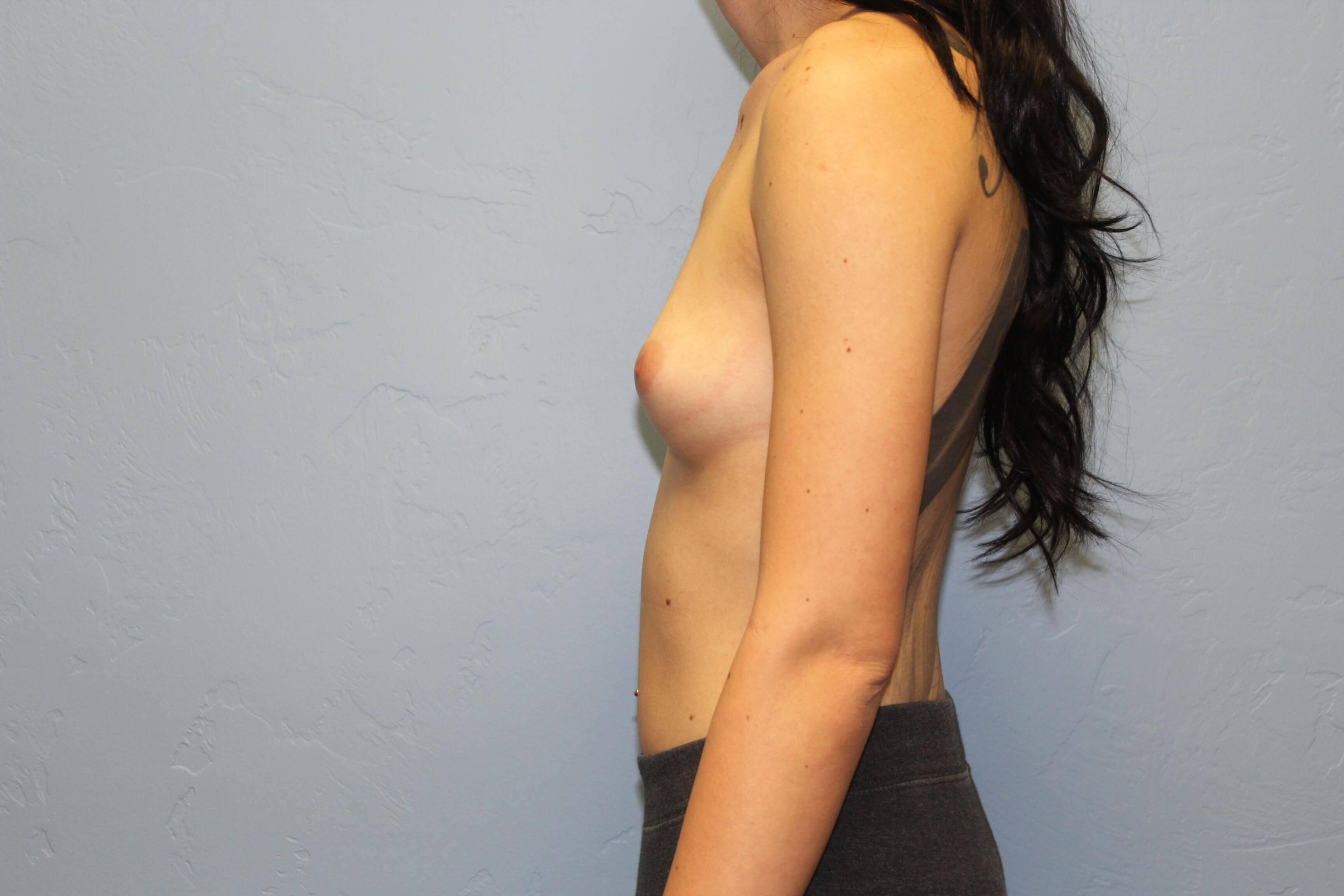 Breast Augmentation, Silicone Before